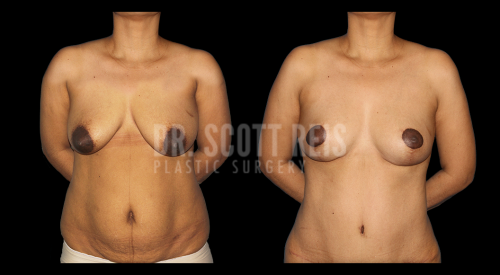 Dr.Reis_July_Abdominoplasty2_Front