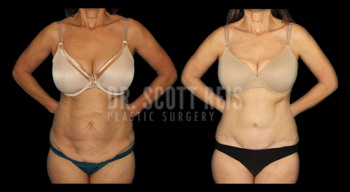 Dr.Reis_July_Abdominoplasty_Front