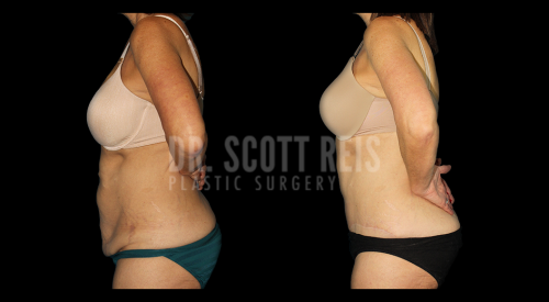 This is a 57-year-old woman who had bariatric surgery and lost over 150 pounds. As is typical with massive weight loss, she had excess loose skin that had lost it's elasticity and recoil and caused hanging loose skin folds all over her body. To address the abdomen, we performed a traditional abdominoplasty with tightening of the abdominal wall and removal of the excess skin laxity as well as lipocontouring of the abdomen, waistline, and flanks. She has a fantastic result and is so happy and more comfortable with her body now
