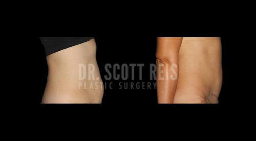 Dr.Reis_August_Abdominoplasty1_Lateral(Revised)