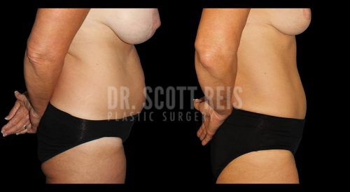 Dr.Reis_August_Abdominoplasty2_Lateral