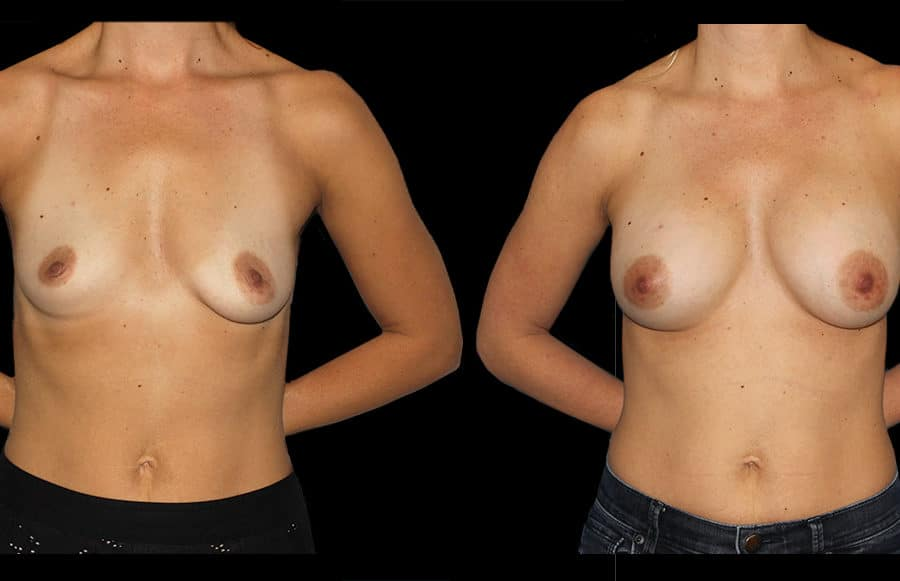 front breast aug case