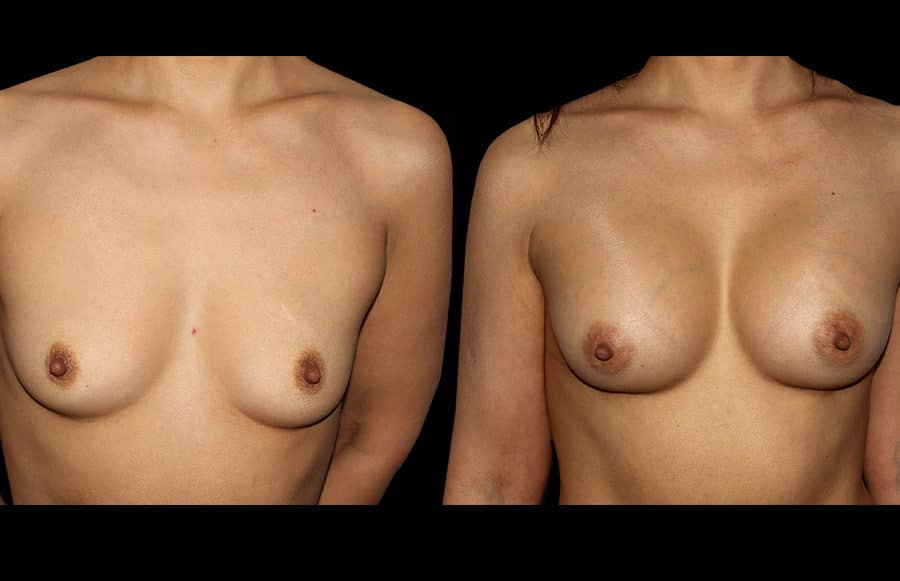 breast aug front