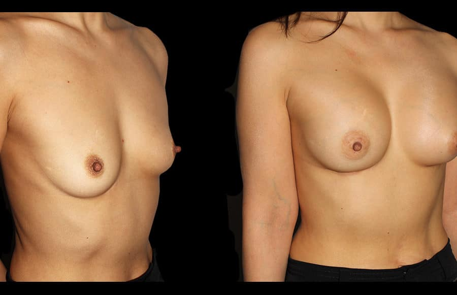 breast aug oblique