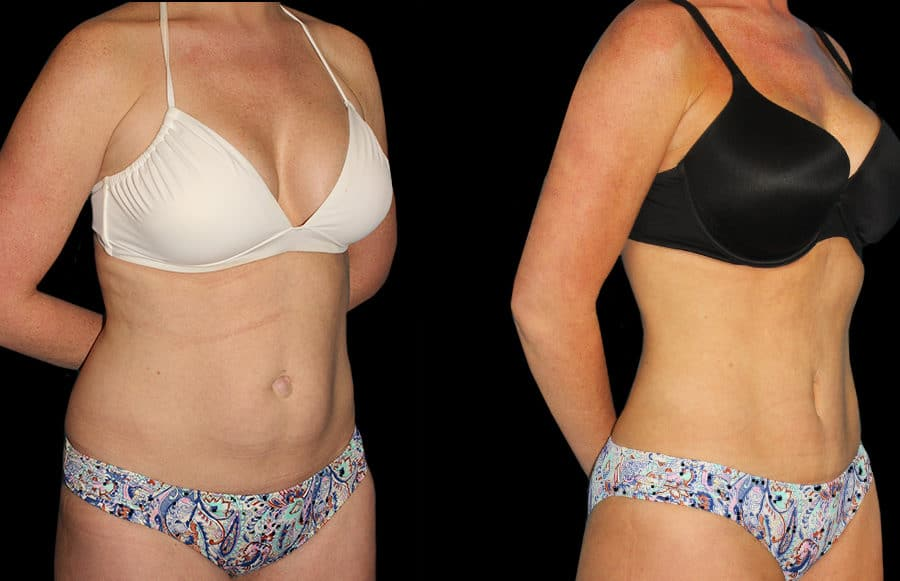 mini tummy tuck oblique