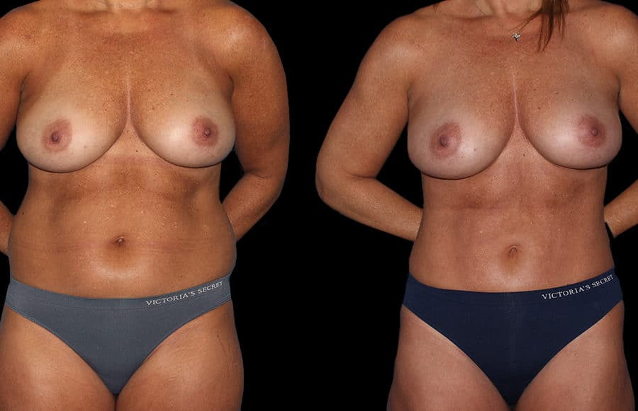 mini tummy tuck front