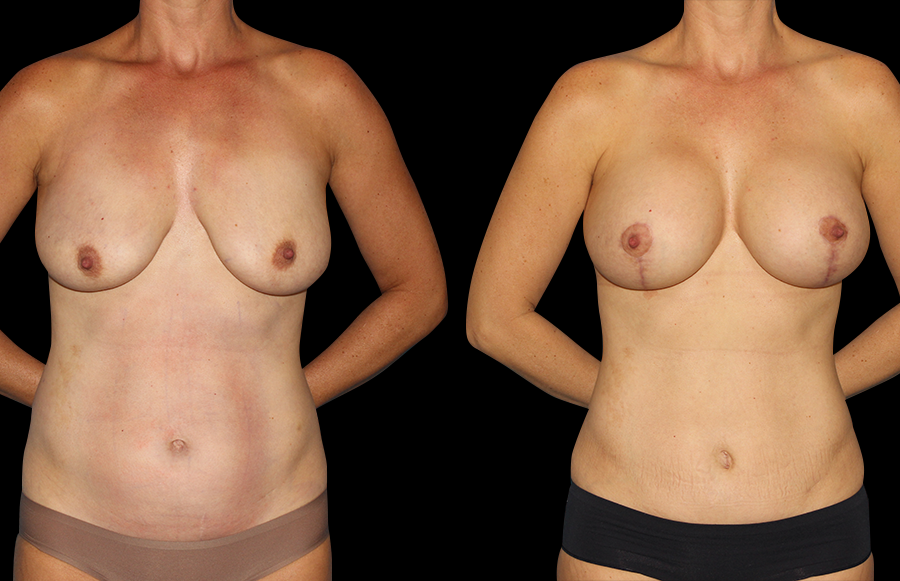 BNA front view of a woman that recently underwent Mommy Makeover & Tummy Tuck surgeries.
