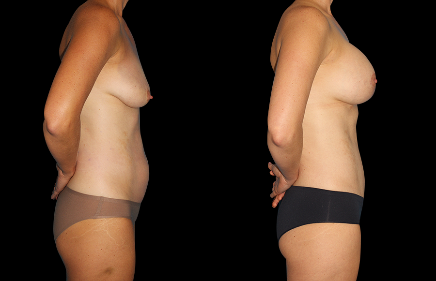 BNA side view of woman that recently underwent Mommy Makeover & Tummy Tuck surgeries.