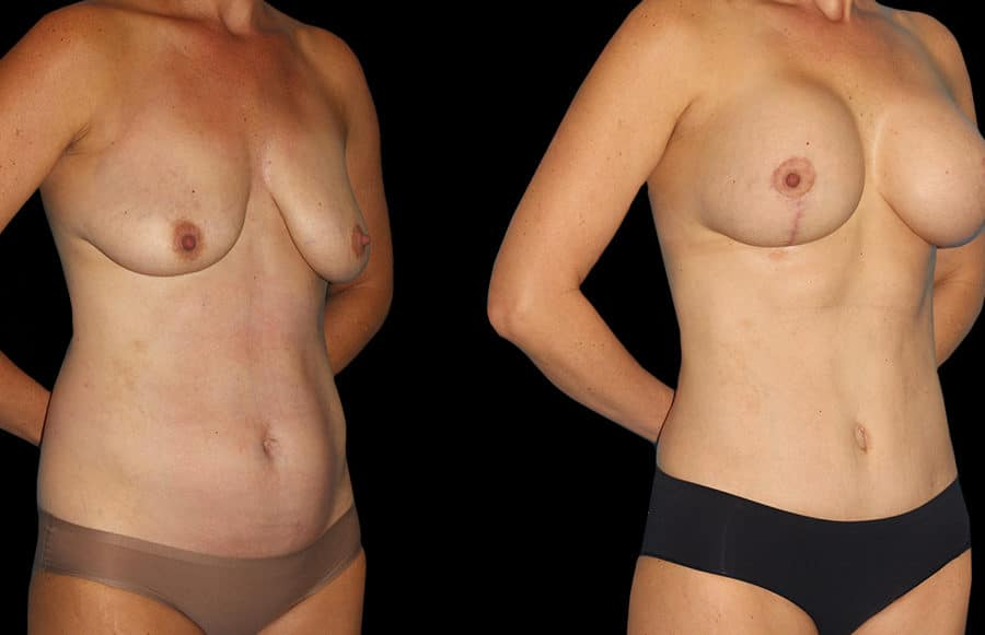 mini tummy tuck side