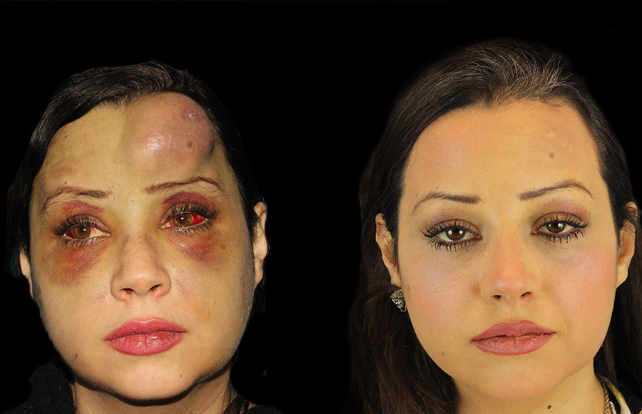 facial tumor reconstruction front