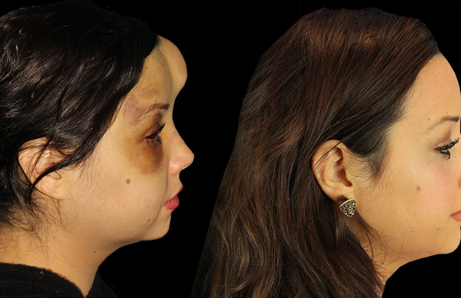 facial tumor reconstruction side
